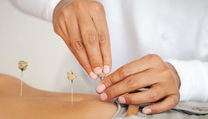 Thuốc chữa đau lưng đau thần kinh toạ khỏi dứt điểm?