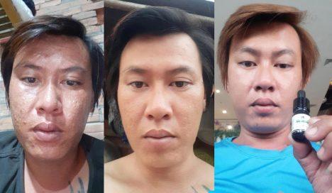 Hiệu quả trị mụn Clean Acne 3S NDHCosmetics bất ngờ